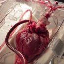 Американские ученые узнали, что может защитить от заболеваний сердца
