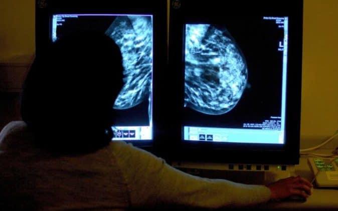 Анализ крови определит рак до проявления его симптомов