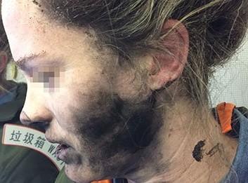 Пассажирка рейса Пекин-Мельбурн получила ожоги из-за взрыва беспроводных наушников