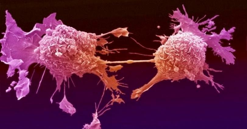 Российские ученые «обучают» ультразвук обнаруживать и убивать раковые клетки