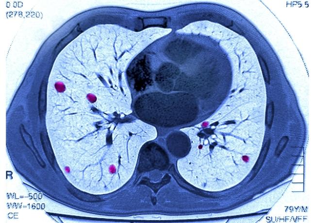 ИИ может предсказать смерть пациента, анализируя состояние его органов
