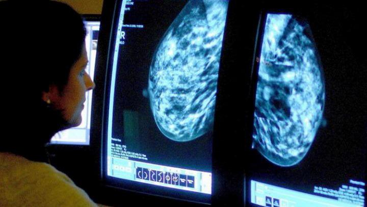 Новый тест поможет пациенткам с раком молочной железы избежать химиотерапии