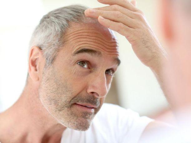 Учёные нашли клетки, ответственные за седину и выпадение волос