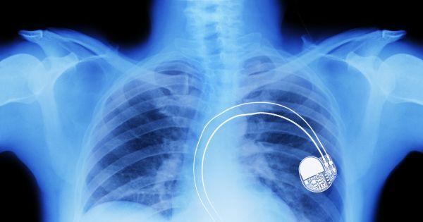 Гибкая органическая батарея произведёт революцию в медицинских имплантатах