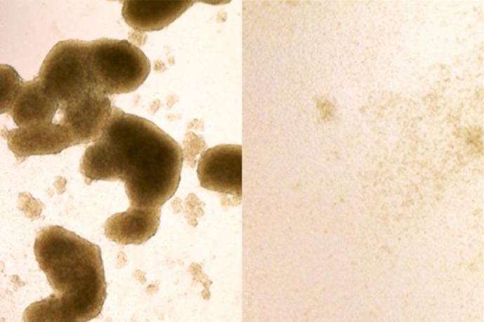 Возможно, ученые смогут использовать вирус Зика для лечения рака мозга