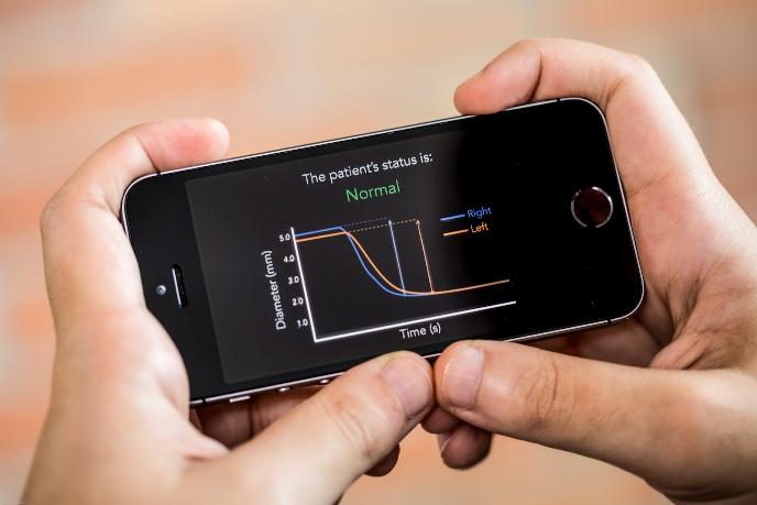 В ближайшем будущем с помощью смартфона можно будет оценить степень тяжести повреждения головного мозга