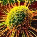 Ученые раскрыли механизм возникновения рецидива рака