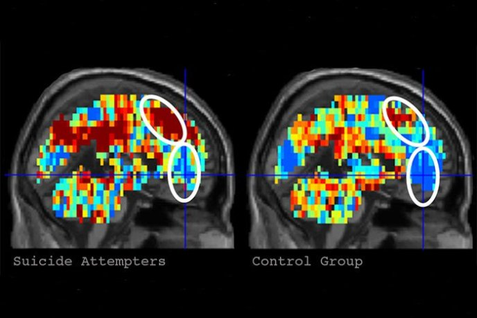 Искусственный интеллект способен идентифицировать людей с суицидальными мыслями