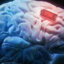 Впервые в истории учёные улучшили человеческую память с помощью имплантата мозга