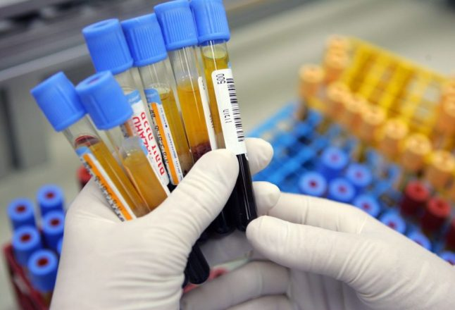 Учёные совершают прорыв в понимании того, как развивается болезнь Паркинсона