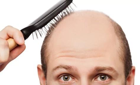 Хорошая новость для лысых: исследователи утверждают, что они создали вещество, вызывающее появление волос