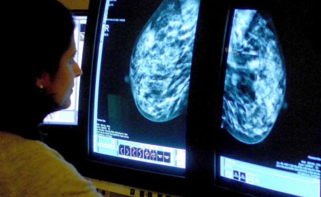 Похудение может снизить риск развития рака молочной железы