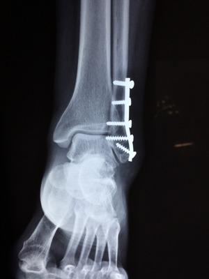 Новый имплантат исцеляет сломанные ноги, превращаясь в настоящую кость