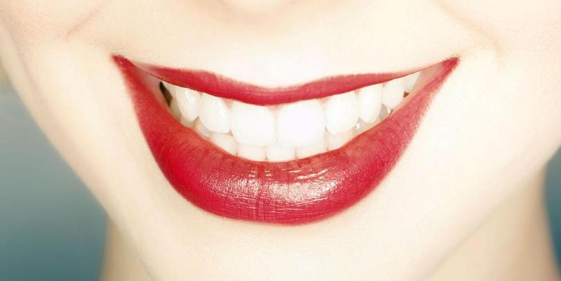 Почему белозубая улыбка отнюдь не свидетельствует о здоровье зубов