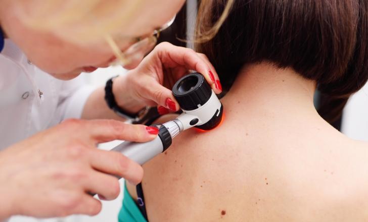 Разработан эффективный метод лечения меланомы, который может быть внедрен уже в ближайшие несколько лет