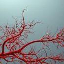 Выращивание новых вен может улучшить жизнь людей на диализе