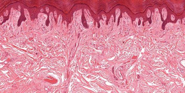 Ученые нашли неизвестный ранее орган, исследование которого позволит понять механизм распространения рака