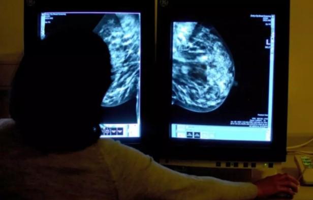 Прорыв в генетике рака молочной железы может привести к новым методам лечения