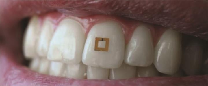 Создан зубной сенсор для корректировки пищевых привычек
