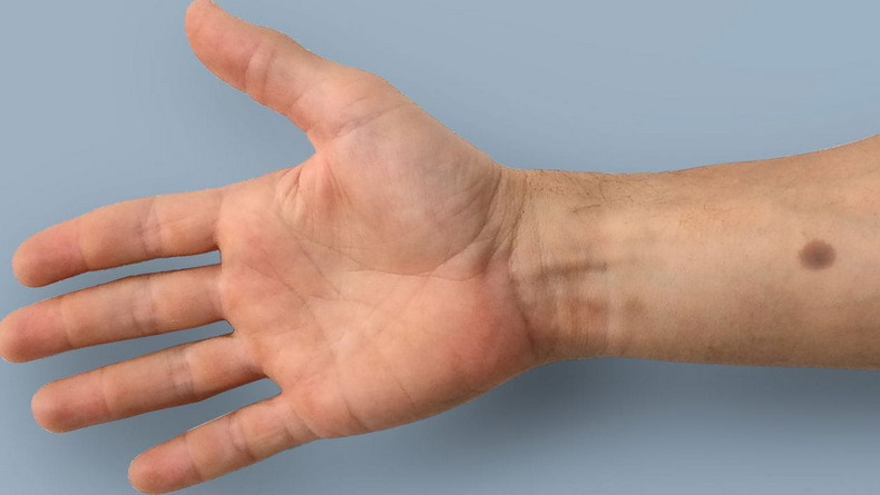 Имплант просигналит о возникновении раковых клеток с помощью искусственного темного пятна