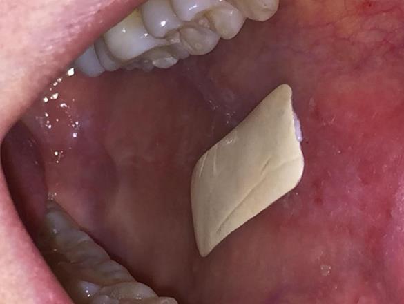 Инновационный пластырь может совершить революцию в лечении заболеваний ротовой полости