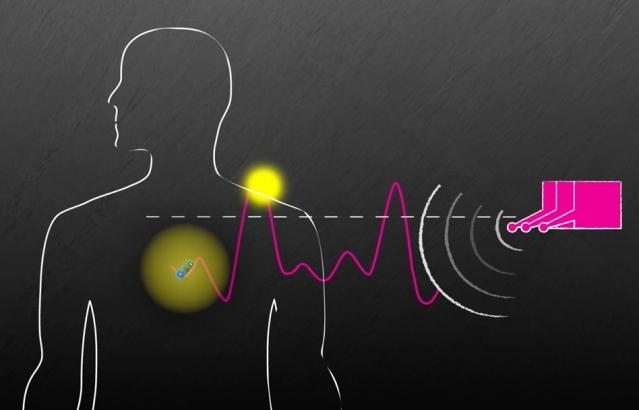 Исследователям удалось запитать крошечный безбатарейный имплантат с расстояния около 40 метров