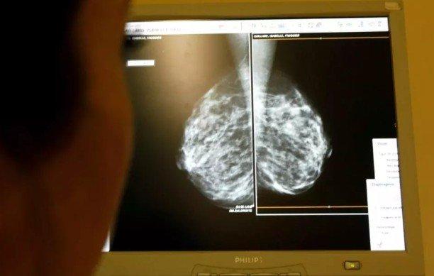 Женщина излечилась от рака молочной железы после того, как врачам удалось использовать для лечения её собственную иммунную систему