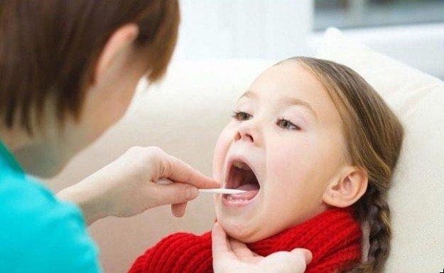 Удаление миндалин в детском возрасте более чем в три раза увеличивает риск развития астмы в дальнейшей жизни
