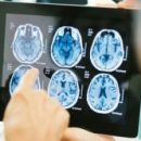 Новая технология способна революционизировать операции по удалению опухолей в головном мозге