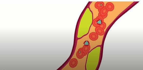 «Хороший» холестерин не всегда может быть хорошим