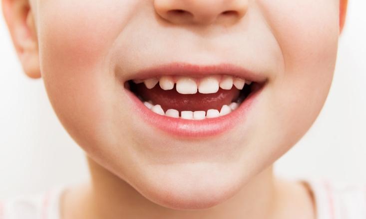 Детские стволовые клетки могут восстанавливать зубную ткань ребенка