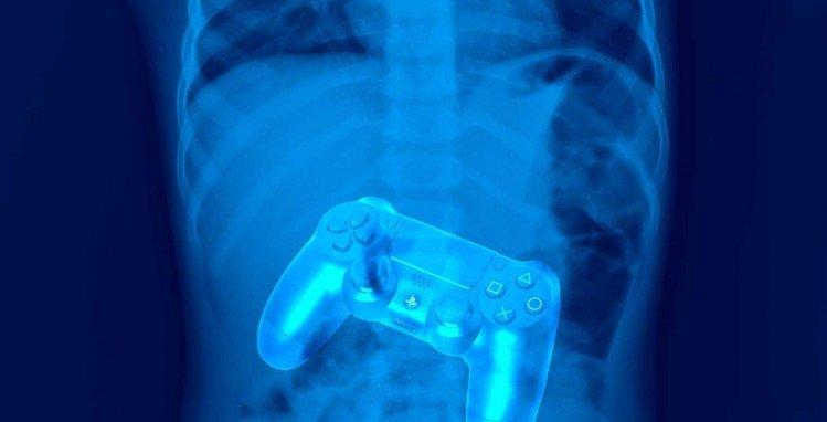 Проглатываемый контроллер перемещает игру с экрана монитора прямо в желудочно-кишечный тракт геймера