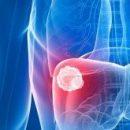 Губка для поглощения избытка препаратов, размещаемая в венах во время сеанса химиотерапии, значительно минимизирует побочные эффекты