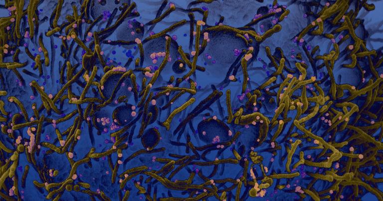 Большой разброс уровней смертности по регионам мира может объясняться различными мутациями коронавируса
