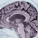 Разработанный в IBM алгоритм способен предсказать развитие у человека в будущем болезни Альцгеймера